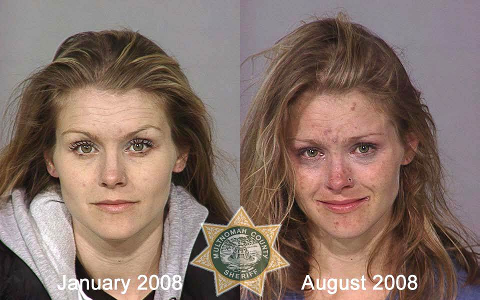 xanax abuse before and after